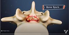 Lumbar Spinal Stenosis -  low.png