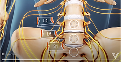 Sciatica Causes and Symptoms - 2leg.png
