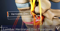 Lumbar Herniated Disc-1low.png