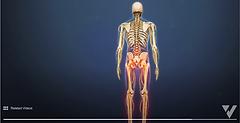 Lumbar Degenerative Disc Disease leg.png