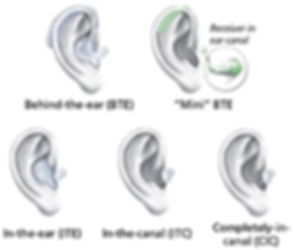 NIDCD-Hearing-Loss-And-Older-Adults-Figu