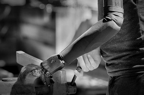 arbeiten mit Handprothese