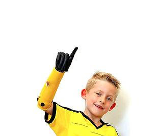Kind mit Handprothese