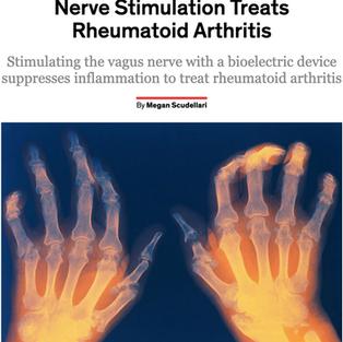 Scientists Discover How Vagus Nerve Stimulation Treats Rheumatoid Arthritis