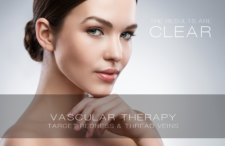 Vascular Therapy I Thread Vein Removal