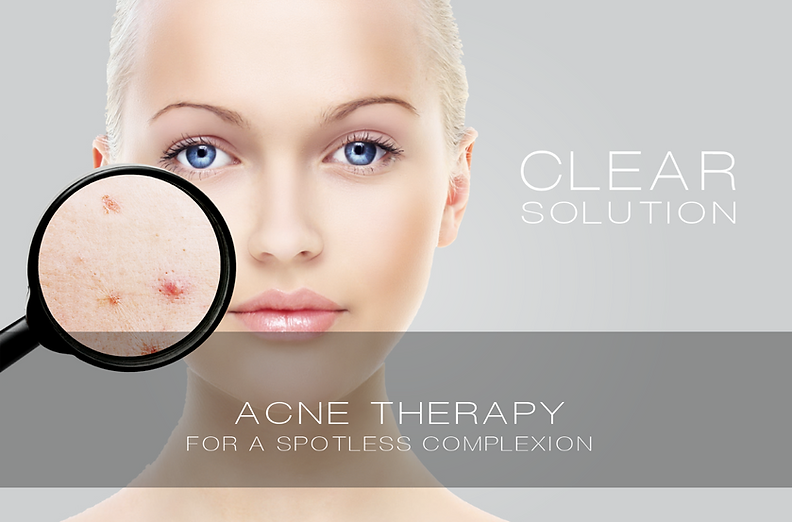 Acne Therapy I Acne Treatment
