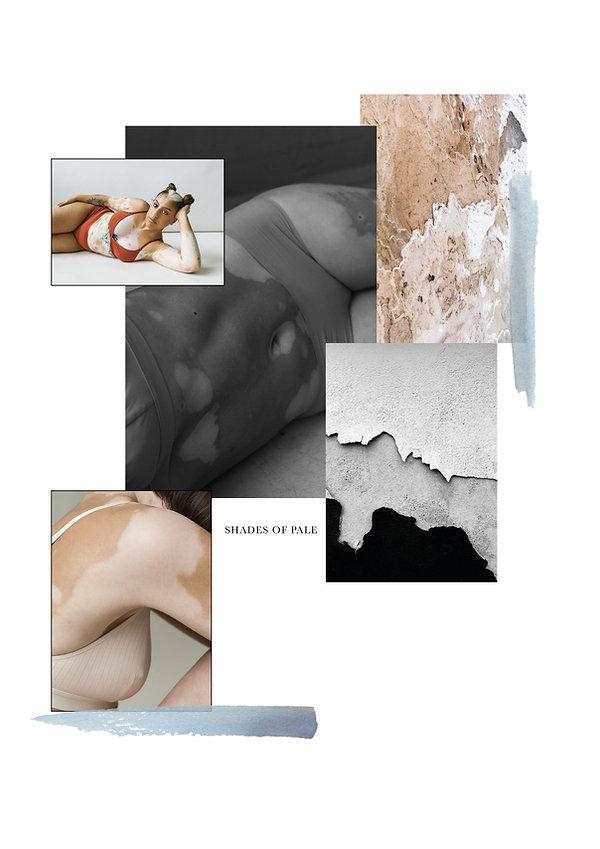 Vitiligo foto project_1.jpg