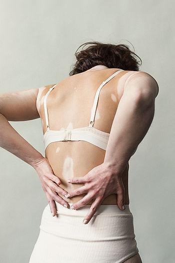 Emilie_Elisabeth van Aalderen_vitiligo_2