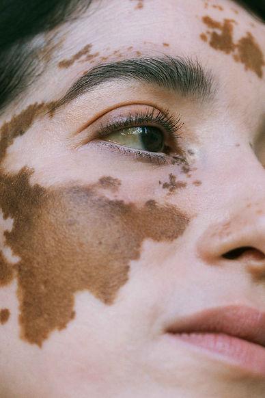 Padminie_Elisabeth van Aalderen_vitiligo