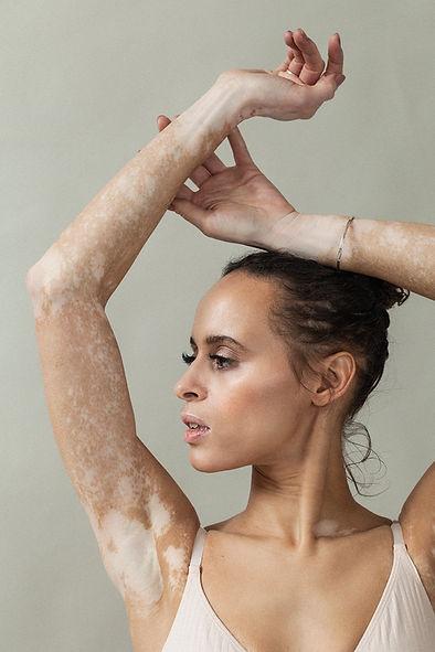 Vitiligo_Natalie_Elisabeth van Aalderen.jpg