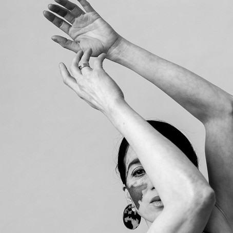 LINDA MAGAZINE: Elisabeth fotografeert vrouwen met vitiligo: 'Een viering van unieke schoonheid'