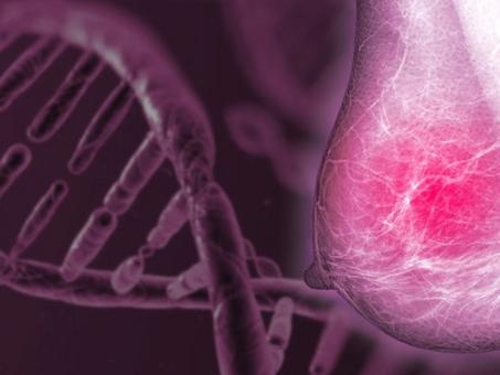 6 cosas que tenés que saber del cáncer de mama heredo familiar.