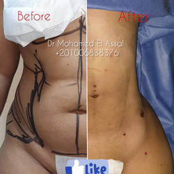 Integrated Liposuction