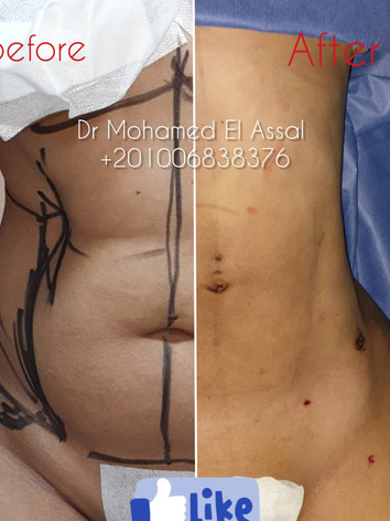 Integrated Liposuction