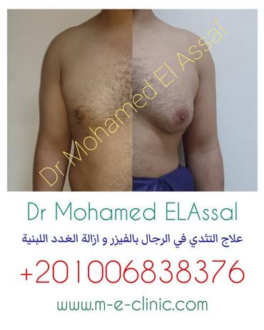 علاج التثدى فى الرجال بالفيزر وازالة الغدد اللبنية