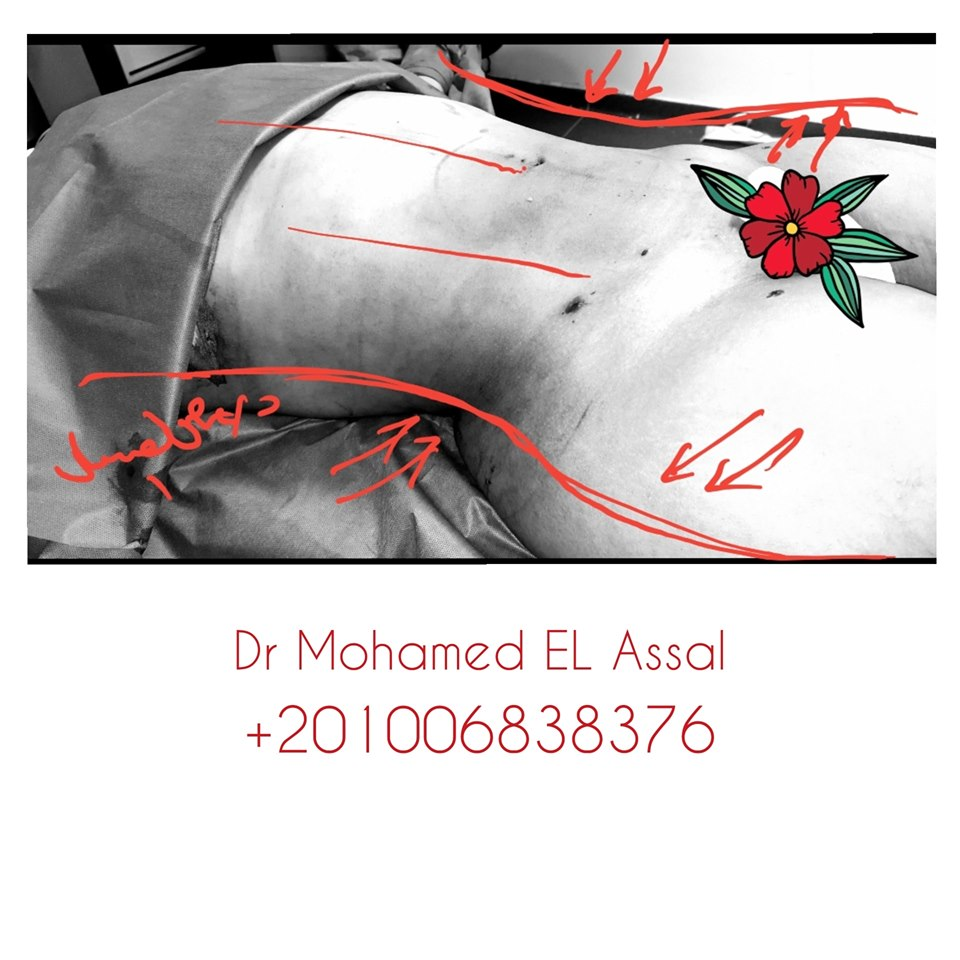 Integrated Liposclupture نحت الجسم