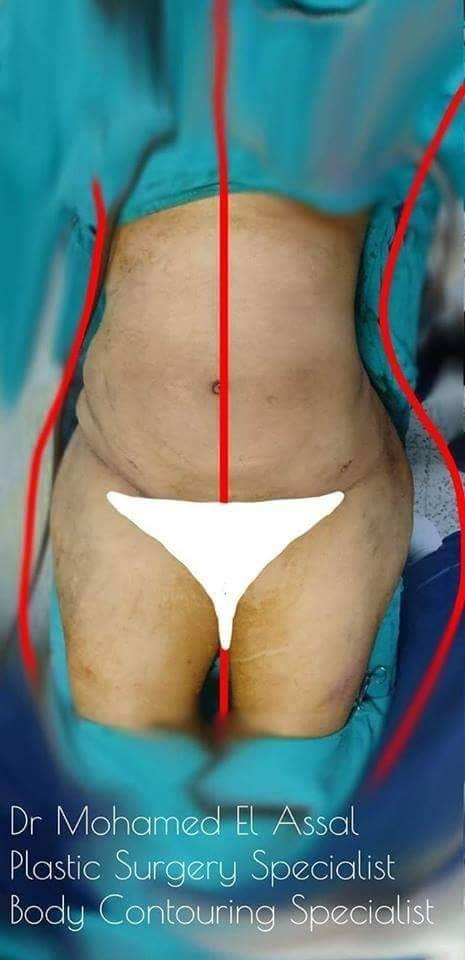 شفط الدهون بالفيزر vaser liposuction