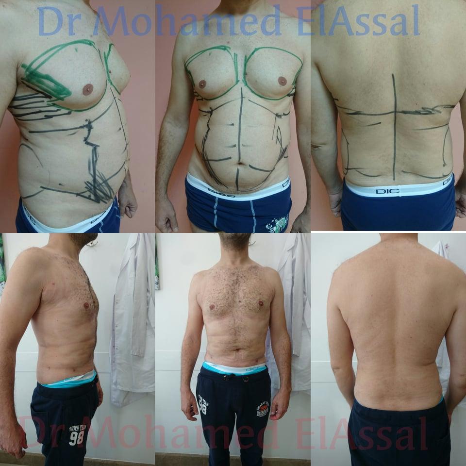 VASER LIPO شفط الدهون بالفيزر