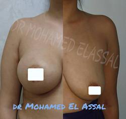 breast augmentation تكبير الثدي
