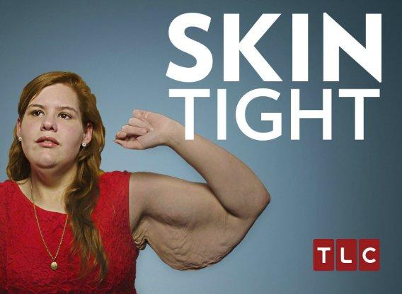 skin-tight.jpg