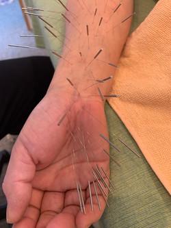 手の平の治療