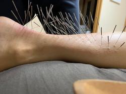 アキレス腱の痛みに対する治療