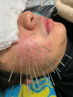 肌荒れに対する治療