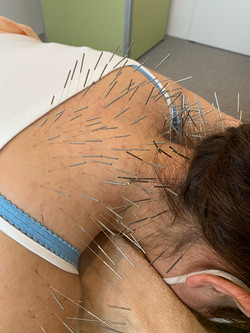 頸肩凝りの治療
