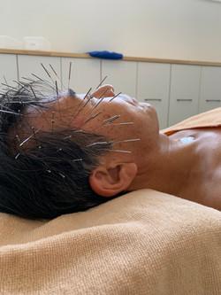 薄毛に対する治療