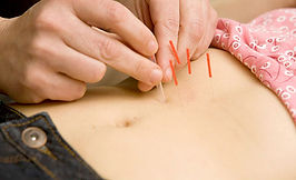 Services_Acupuncture_Slimming.jpg