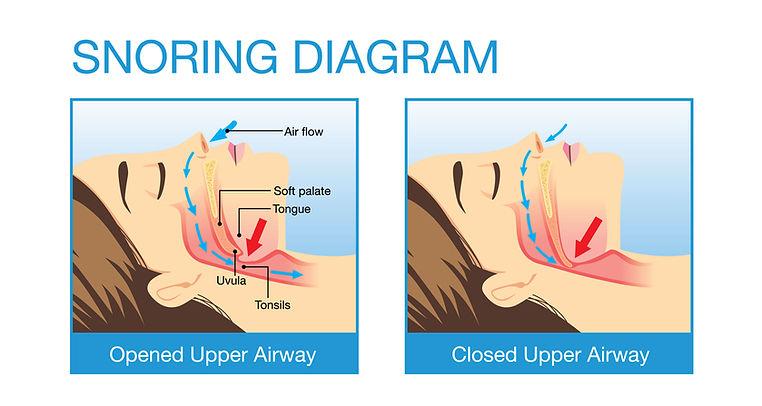 snoring solutions Dubai UAE
