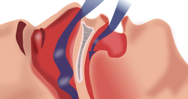 Types of sleep apnea  Dubai Abu Dhabi UAE