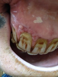 Horse teeth with gingivitis