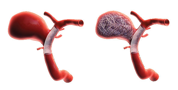Stent-Assisted-Coiling.jpg