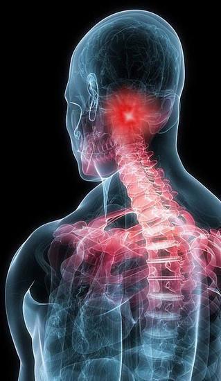 9 op 10 dragen een (pijn)last onder de schedelbasis
