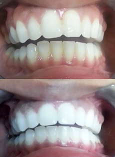 Teeth Whitening results for 60 minute office treatment at New Wave