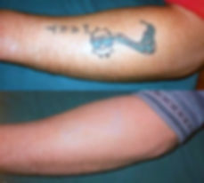 Laser Tattoo Removal of blue and black ink on lower arm
