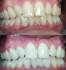 Teeth Whitening results at New Wave in Lehigh Valley PA
