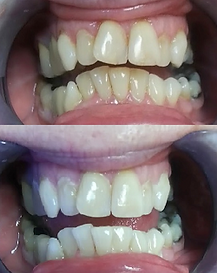 Teeth Whitening Before & After results on teeth with multiple types of staining