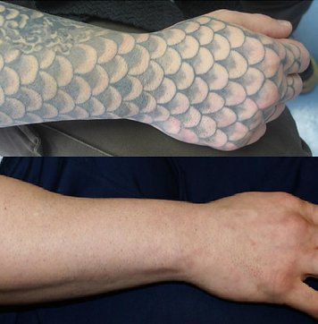 Laser Tattoo Removal of Sleeve