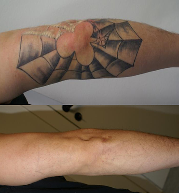 Laser Tattoo Removal of Multi-Colored Inks on Elbow