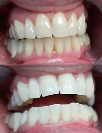 Teeth Whitening before & after results at New Wave Accelerated Teeth Whitening