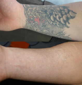 Laser Tattoo Removal of black and red ink on lower arm