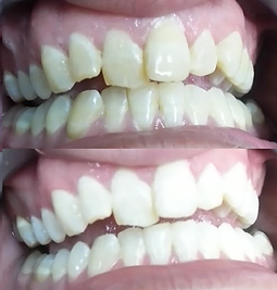 Teeth Whitening before & after results on commonly stained teeth