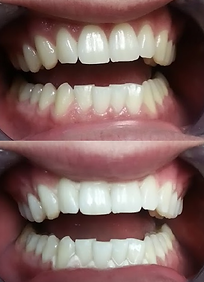Teeth Whitening results on typically faded teeth