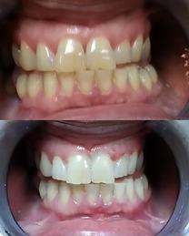 Teeth Whitening Before & After results on typically stained teeth