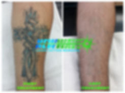 Laser Tattoo Removal Before & After of Blue & Black Ink Forearm