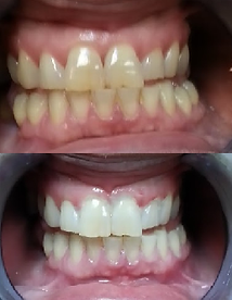 Teeth Whitening results for teeth with assorted staining