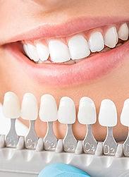 teethwhitening-1 with shade chart.jpg