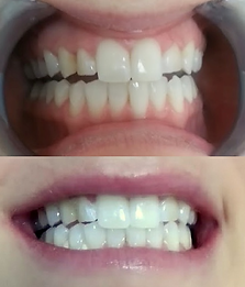 Teeth Whitening before & after on commonly faded teeth